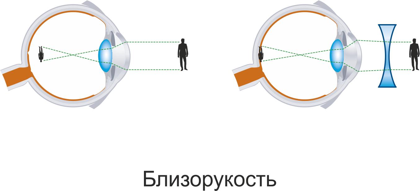 Сравнительное изображение близорукости и нормального зрения