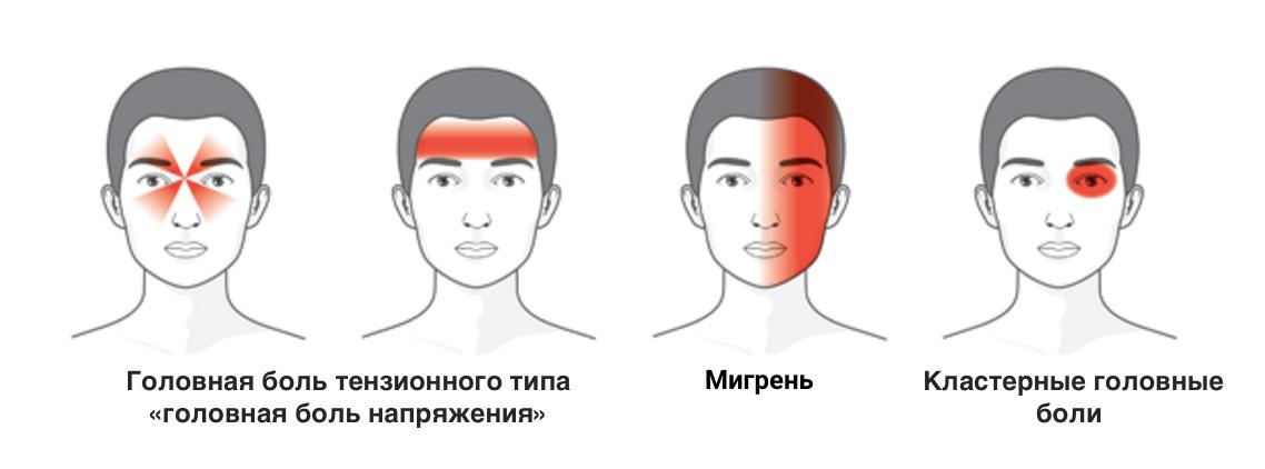 Изображение локализации головной боли