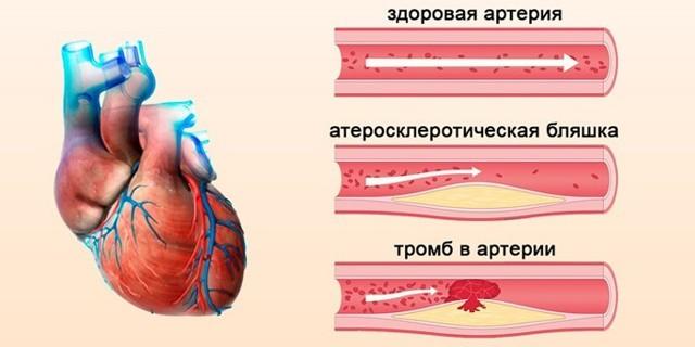Изображение того, зачем делают допплерометрию сосудов