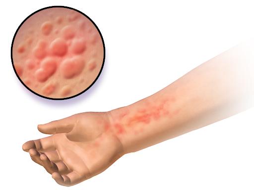 Аллергическая сыпь на коже руки ребенка