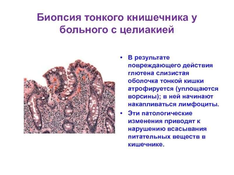 Вид кишечника больного с целиакией