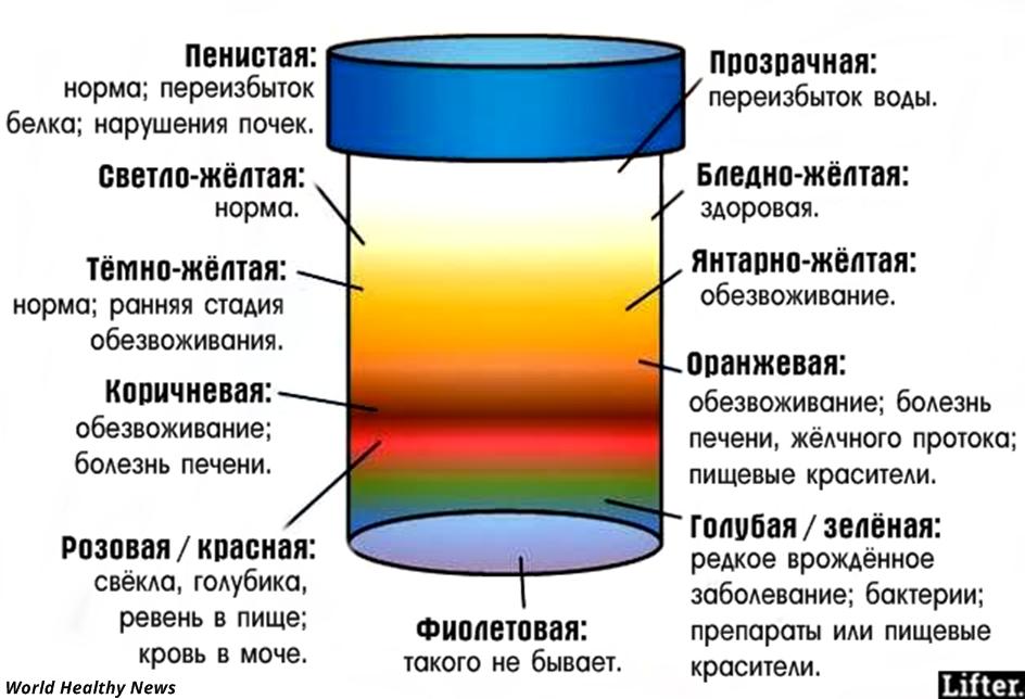 Изображение изменений цвета мочи