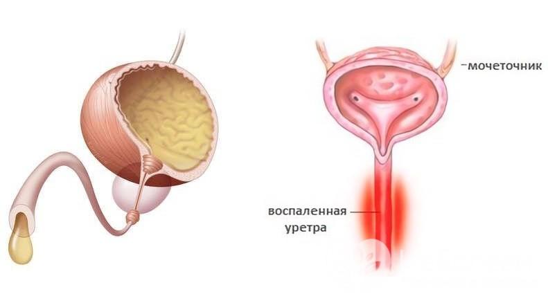 Изображение выделения из уретры и воспалённой уретры