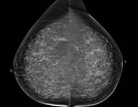 Рентген молочных желез, маммография