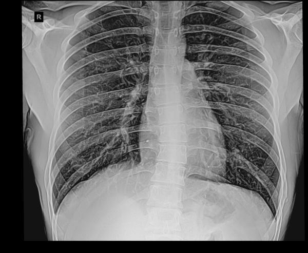 Рентген ребер