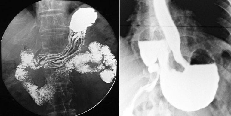 Рентген желудка и 12-перстной кишки