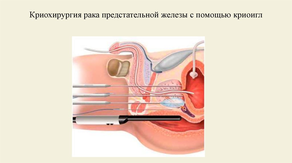 Криохирургия
