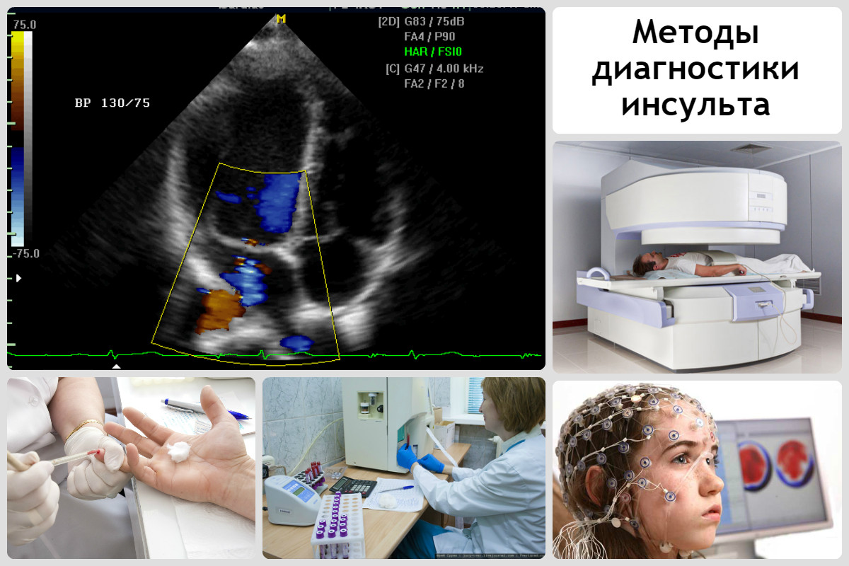 Инновационные подходы к диагностике ишемического инсульта