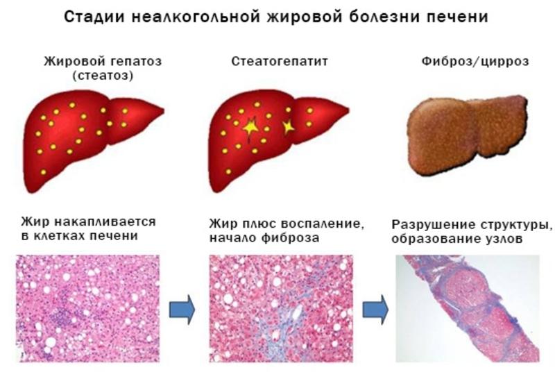 Стадии неалкогольной жировой болезни печени