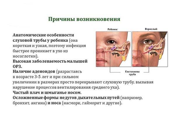Воспалительные заболевания среднего уха, особенности среднего отита у детей