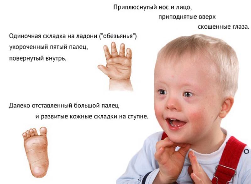 Синдром или болезнь Дауна