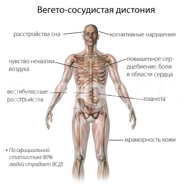 Вегетативная дистония