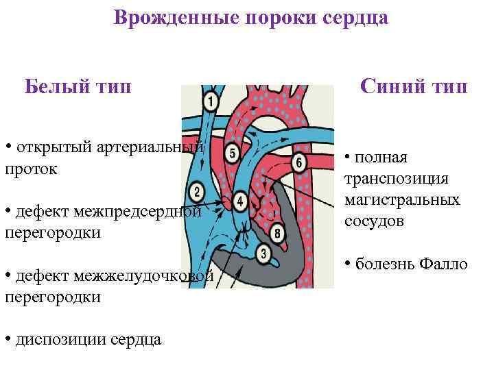 Виды врождённых пороков сердца у детей