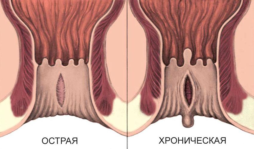 Хроническая анальная трещина
