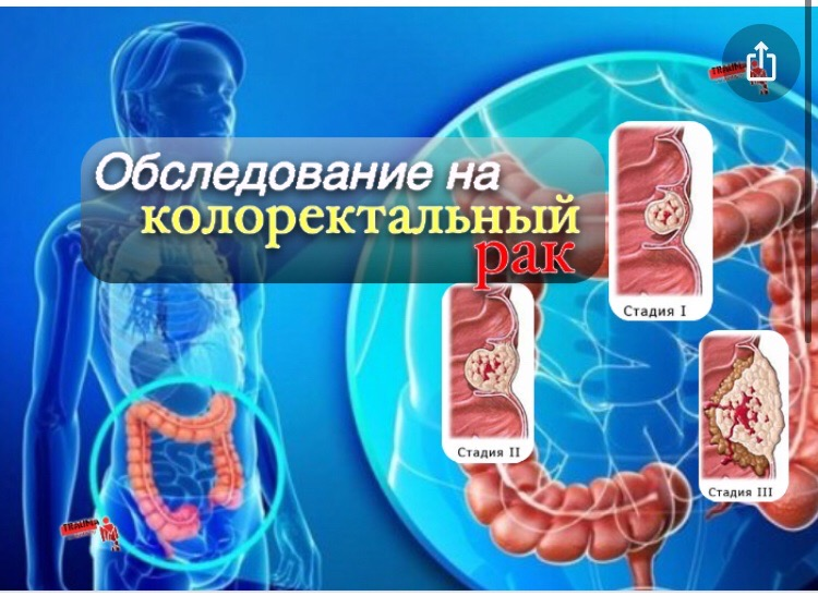 Диагностика колоректального рака