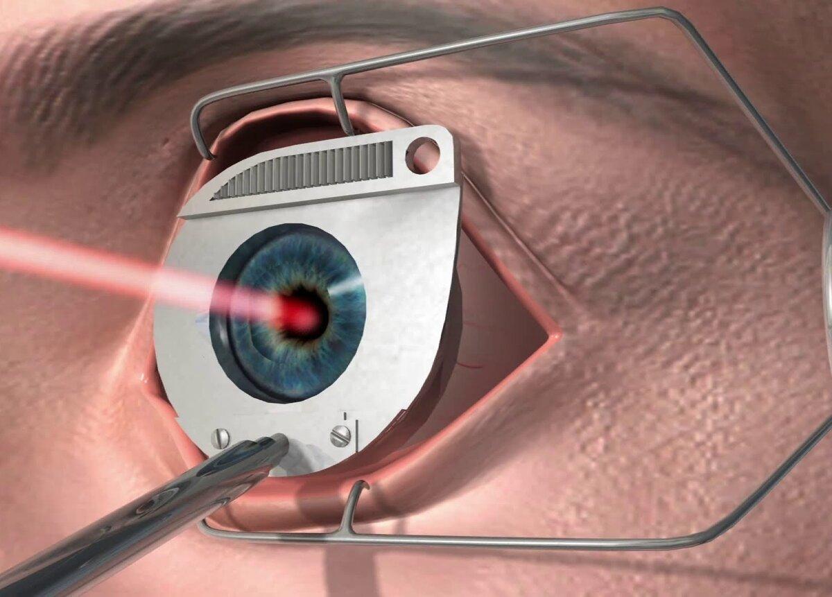 Лазерная офтальмология