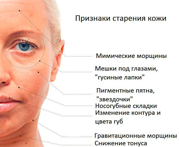 Причины и признаки старения кожи