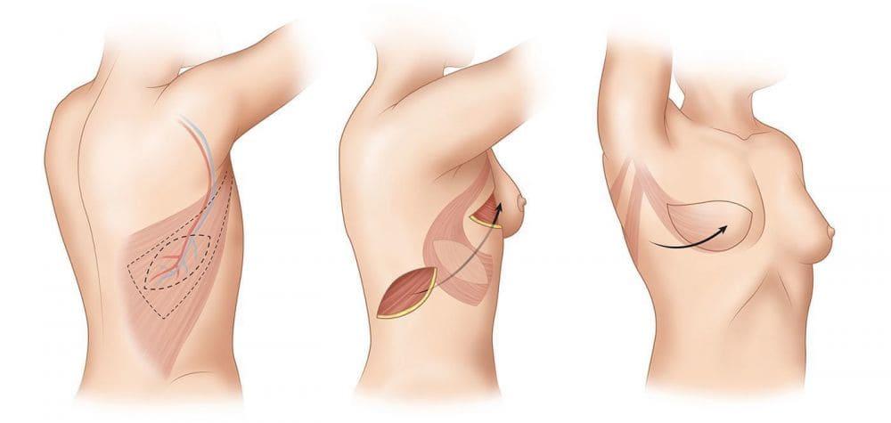 Реконструктивно-пластические операции рака молочной железы