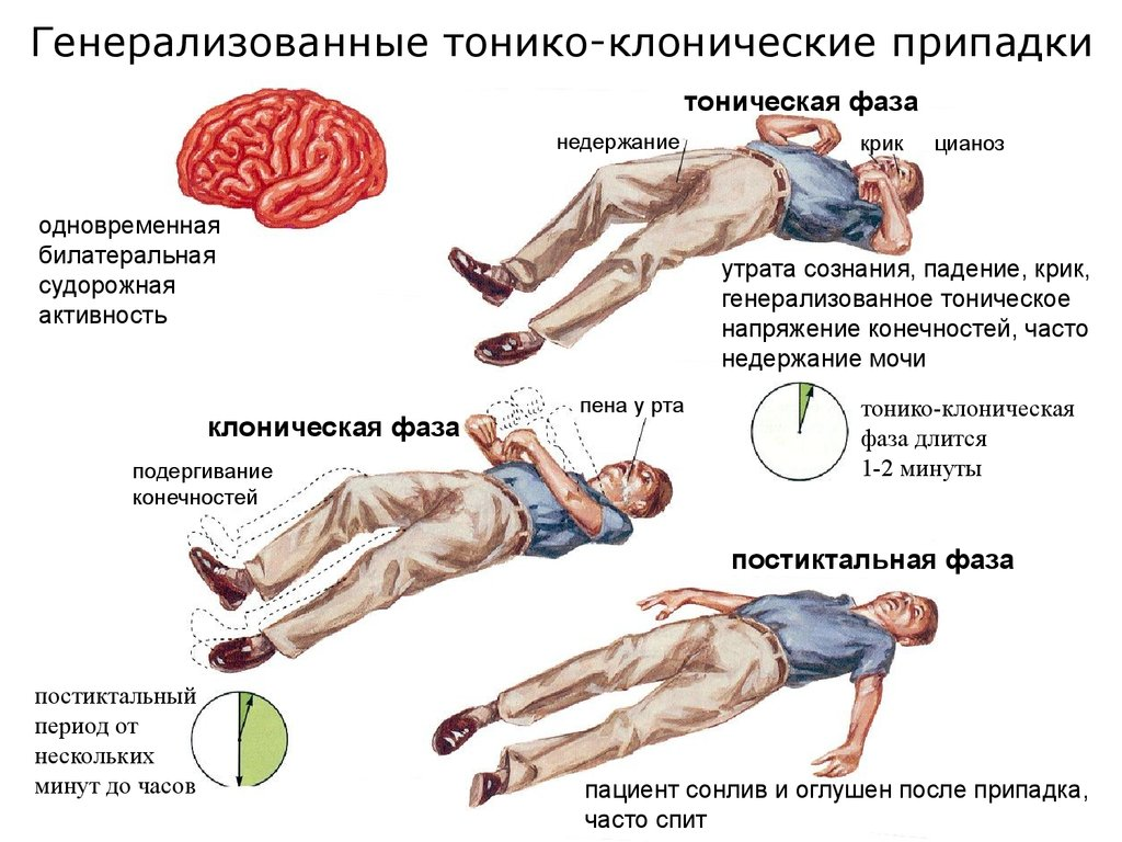 Эпилепсия у взрослых