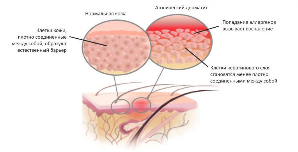 Атопический дерматит_1