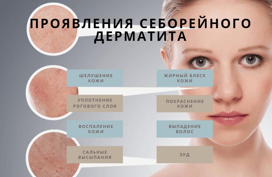Себорейный дерматит_