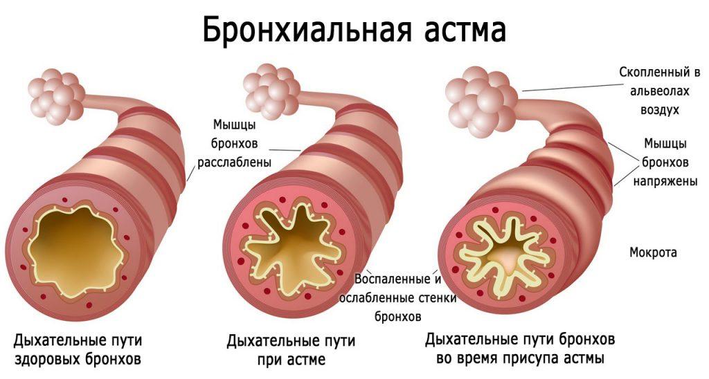 Бронхиальная астма_1