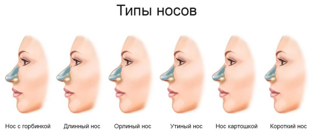 Типы носов