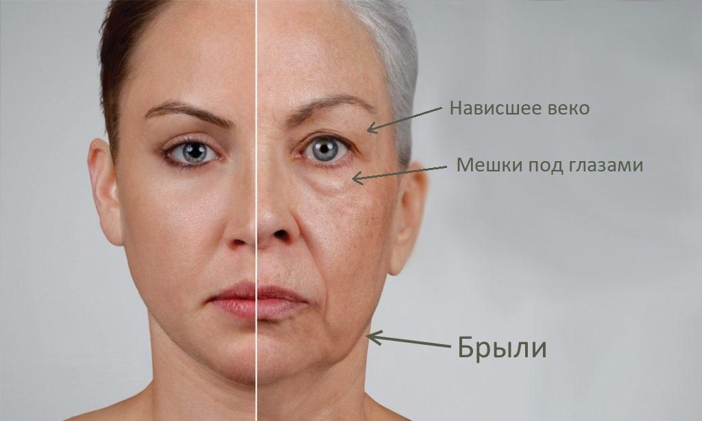 Дефекты овала лица