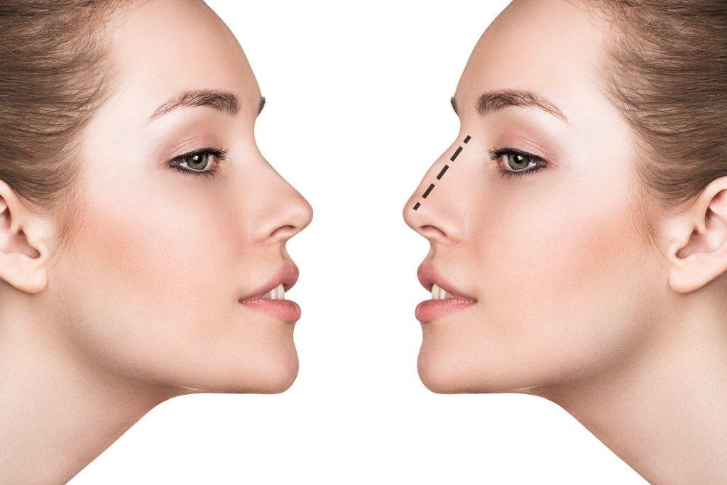 Дефекты формы носа